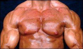 steroide gevolgen