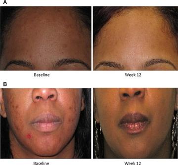acne vitamine